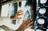 Ученые установили признаки рака