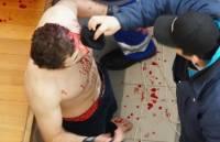 Избитый в Грузии парапланерист рассказал о вероятных причинах нападения