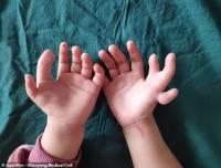 Китайские хирурги прооперировали девочку с 14 пальцами
