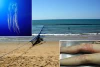 На Канарских островах пляжи заполнили ядовитые медузы