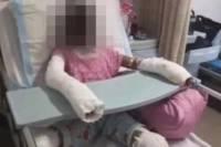 В Китае девочка получила смертельные ожоги, пытаясь повторить рецепт с YouTube