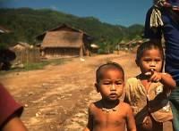 В мире более 176 млн детей страдают от задержки роста
